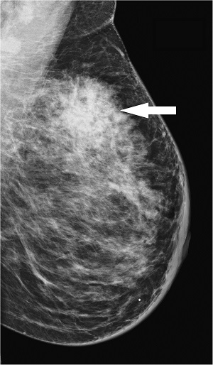 breast cancer radiografia